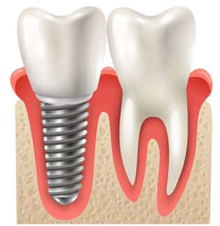 Dental Implants in Ann Arbor and Ypsilanti (Ypsi), Washtenaw, Michigan by Dental House